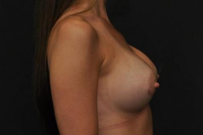 Case #1643 – Breast Augmentation