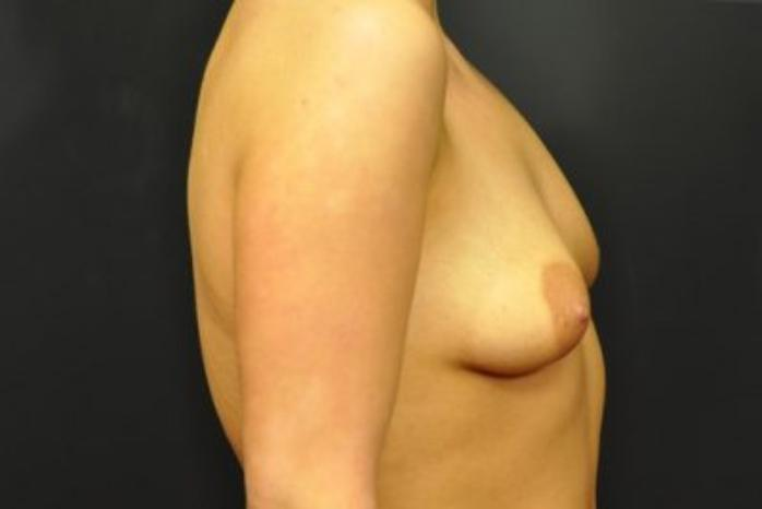 Case #1655 – Breast Augmentation