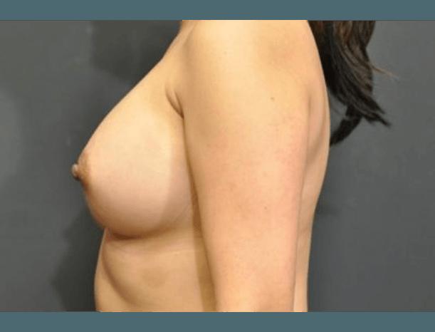 Case #1671 – Breast Augmentation