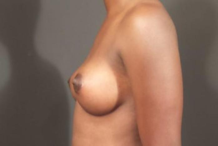 Case #1683 – Breast Augmentation