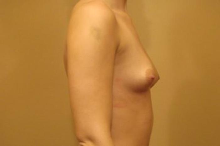 Case #1695 – Breast Augmentation