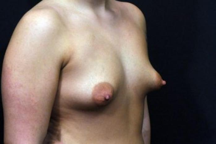 Case #1707 – Breast Augmentation