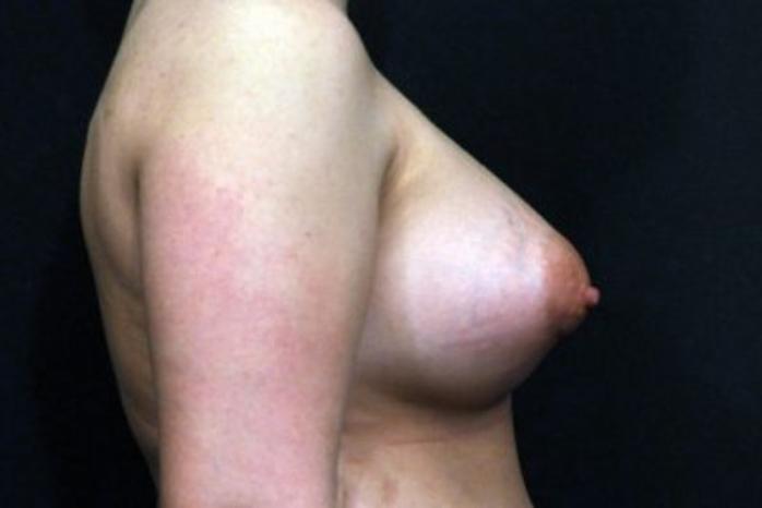 Case #1707 – Breast Augmentation