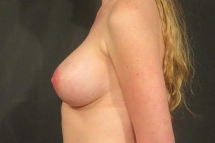 Case #1720 – Breast Augmentation