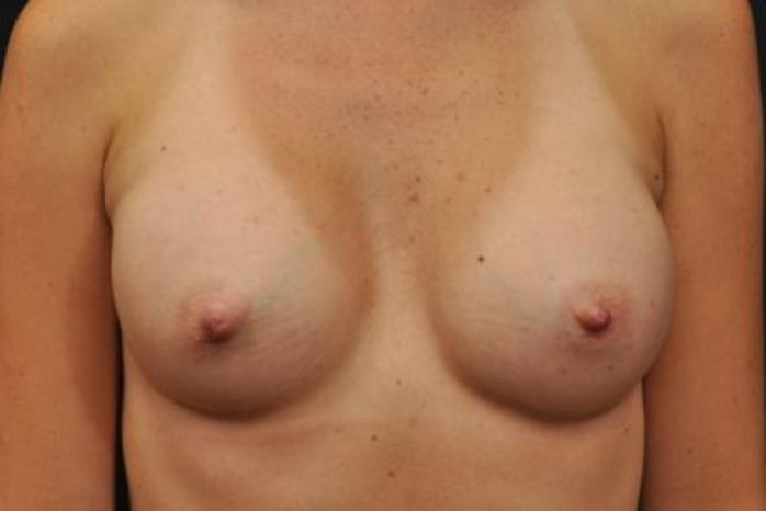 Case #1733 – Breast Augmentation