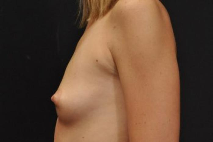 Case #1733 – Breast Augmentation