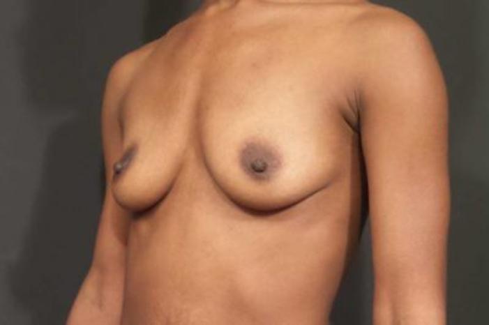 Case #1749 – Breast Augmentation