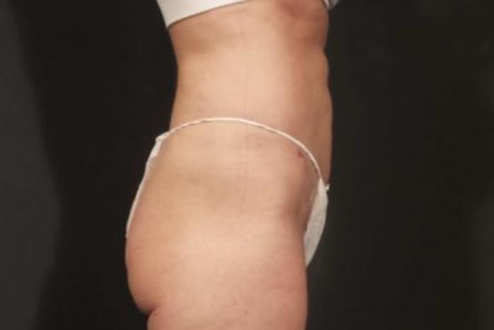 Case #174 – Liposuction