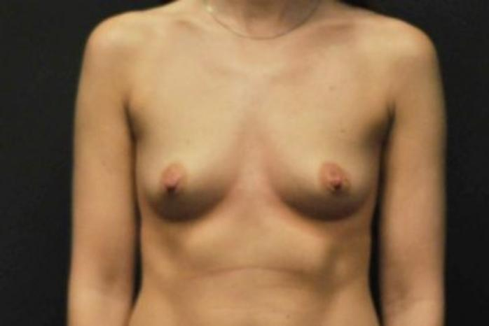 Case #1764 – Breast Augmentation
