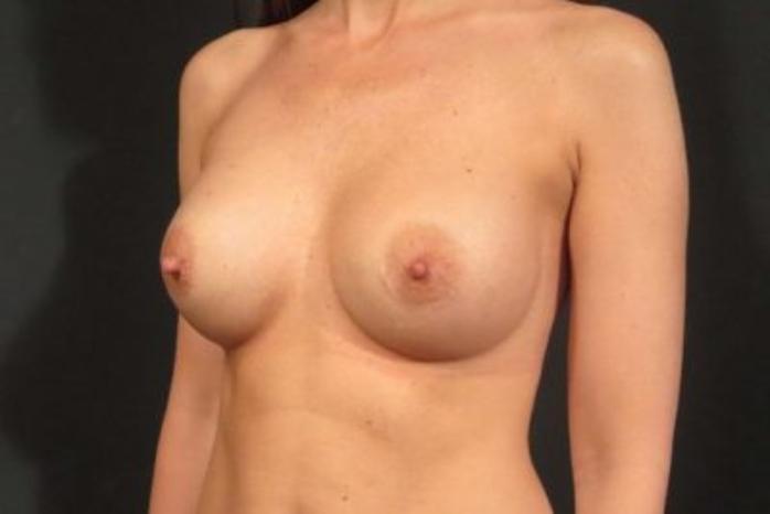Case #1764 – Breast Augmentation