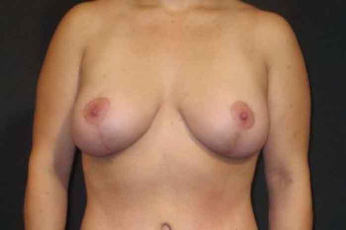 Case #1777 – Breast Lift