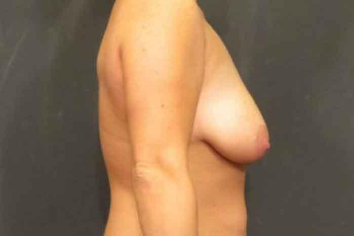 Case #1777 – Breast Augmentation