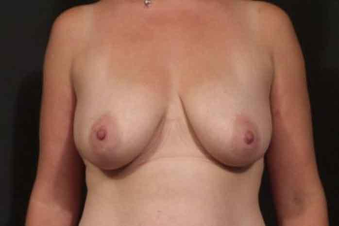 Case #1791 – Breast Augmentation