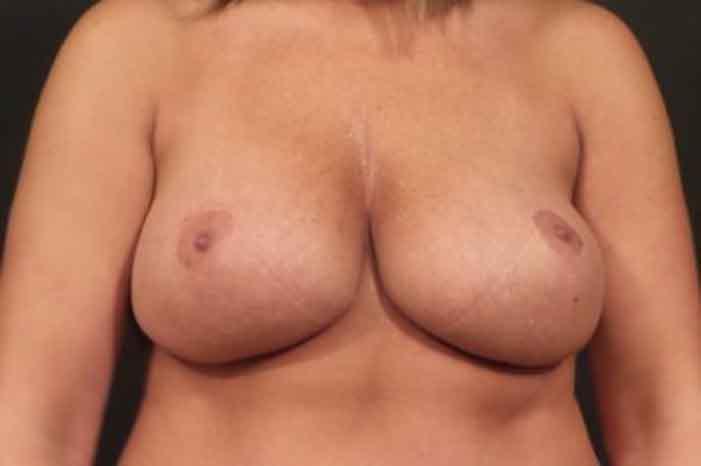 Case #1803 – Breast Augmentation