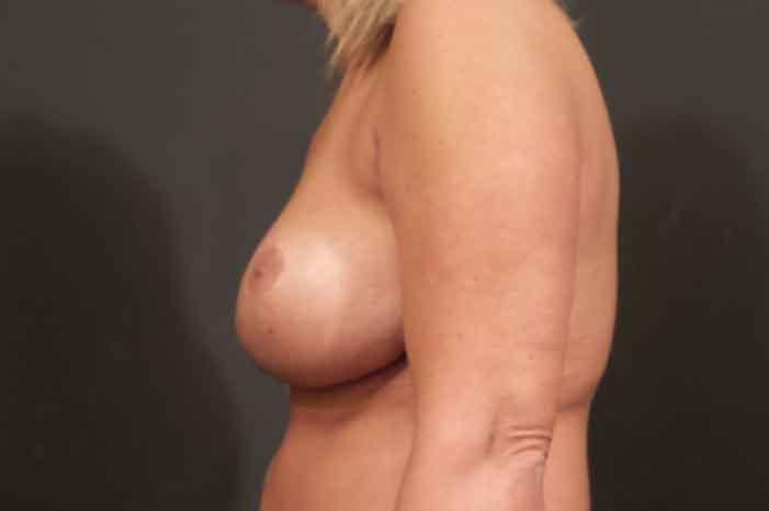 Case #1803 – Breast Lift