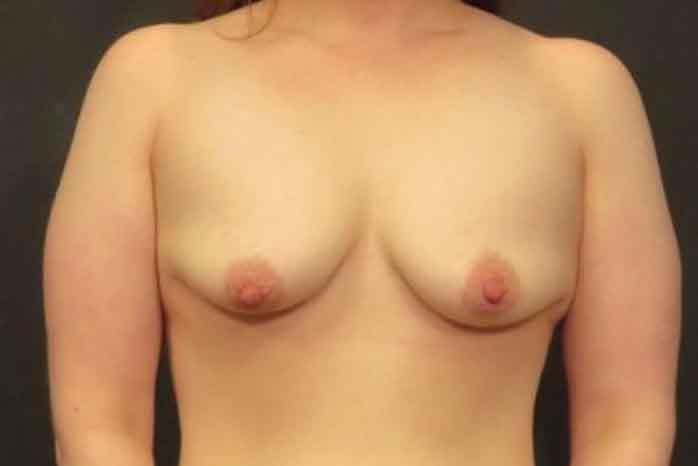 Case #1815 – Breast Lift