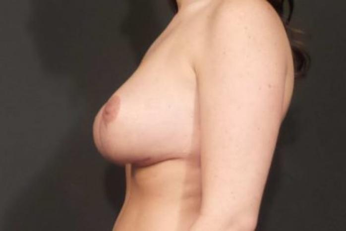 Case #1827 – Breast Augmentation