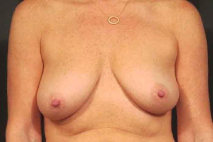 Case #1837 – Breast Augmentation