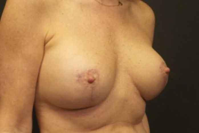 Case #1837 – Breast Lift