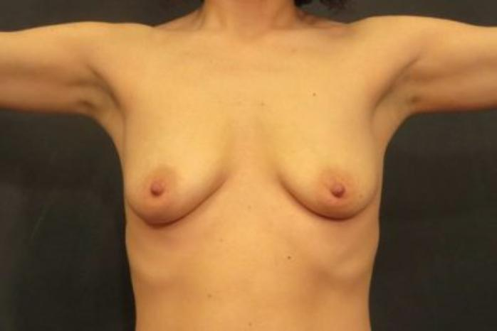 Case #1849 – Breast Augmentation