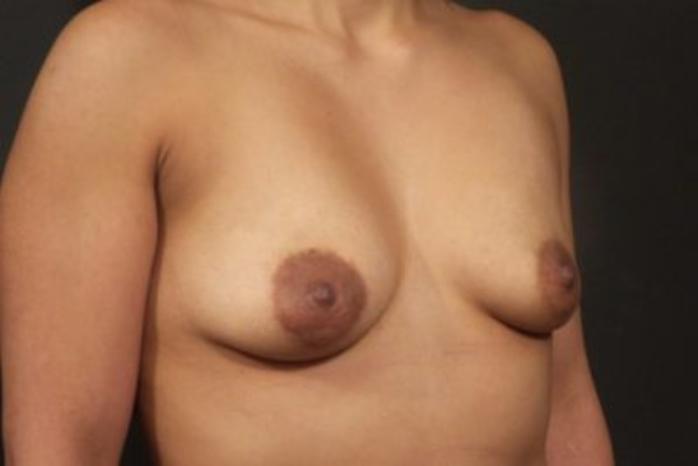 Case #1865 – Breast Augmentation