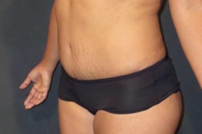 Case #186 – Liposuction