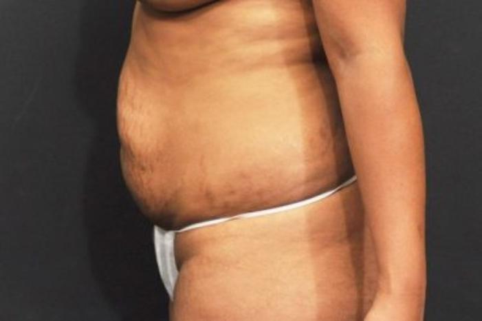 Case #186 – Tummy Tuck