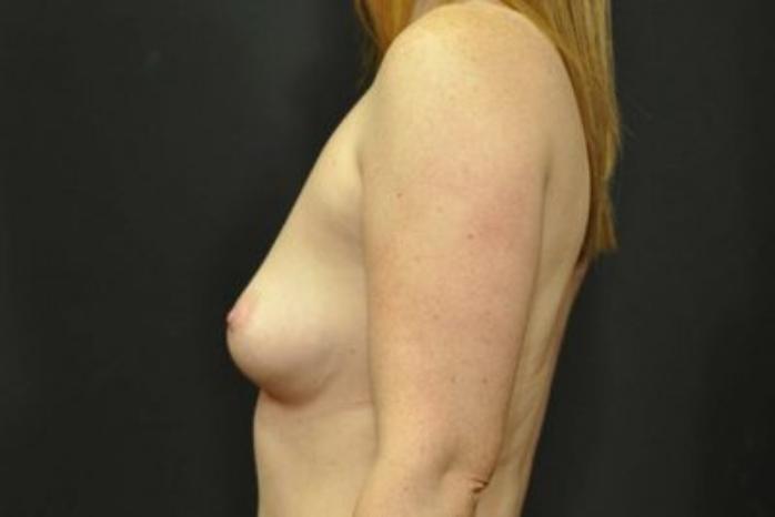 Case #1879 – Breast Augmentation