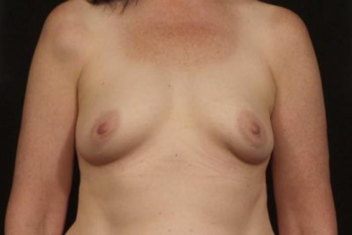 Case #1891 – Breast Augmentation