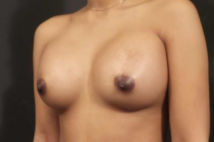 Case #1903 – Breast Augmentation