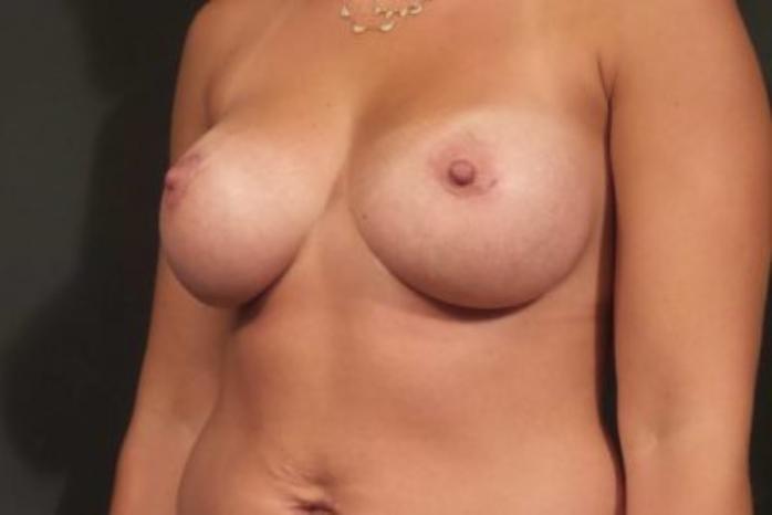 Case #1919 – Breast Augmentation