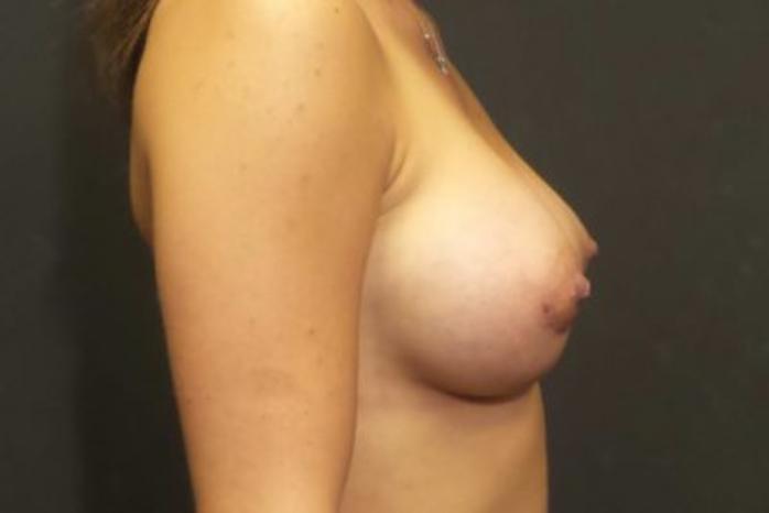 Case #1935 – Breast Augmentation