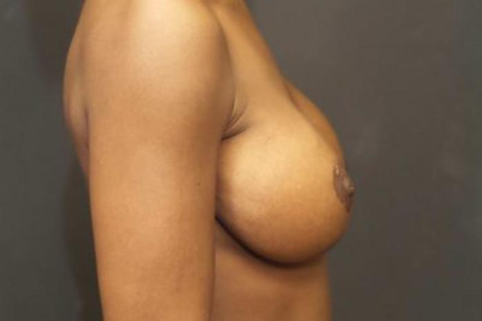 Case #1951 – Breast Augmentation