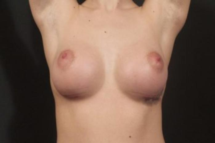 Case #1965 – Breast Augmentation