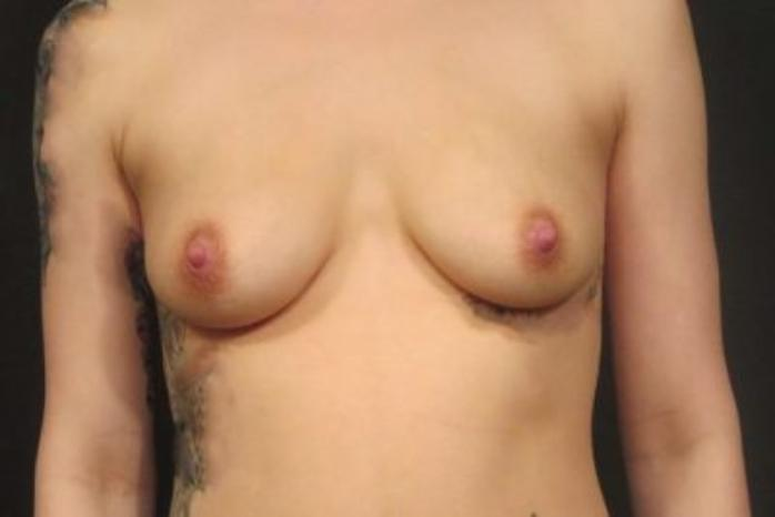 Case #1977 – Breast Augmentation