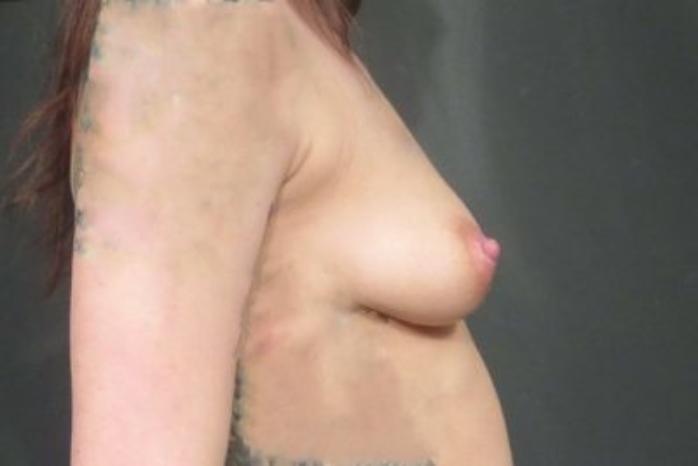 Case #1977 – Breast Augmentation