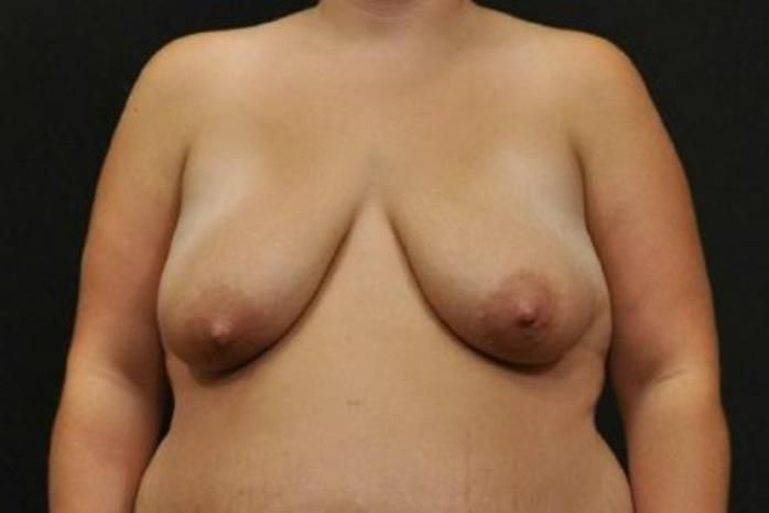 Case #1989 – Breast Augmentation