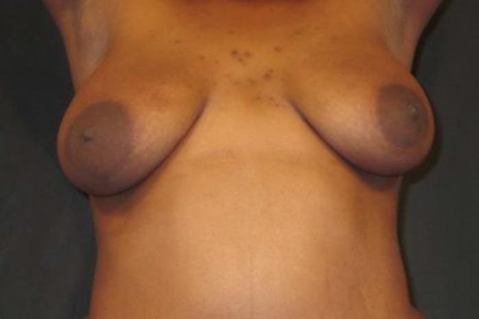 Case #1999 – Breast Lift