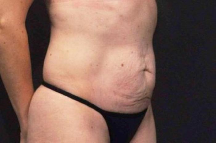 Case #200 – Tummy Tuck