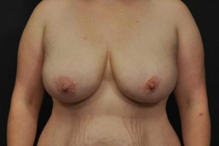 Case #2015 – Breast Lift