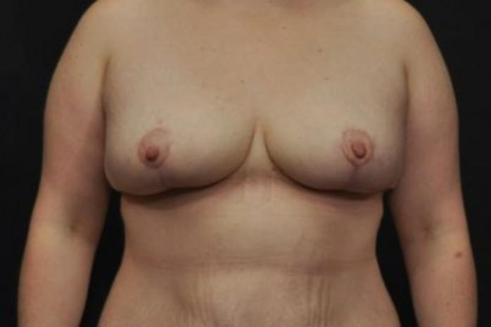 Case #2015 – Breast Lift