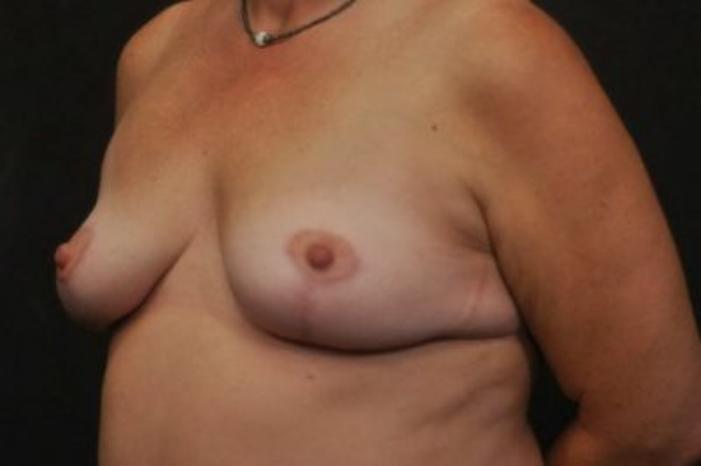 Case #2027 – Breast Lift