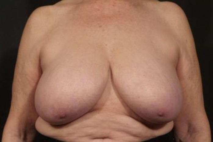 Case #2039 – Breast Reduction