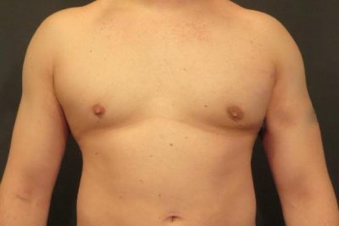 Case #2063 – Liposuction
