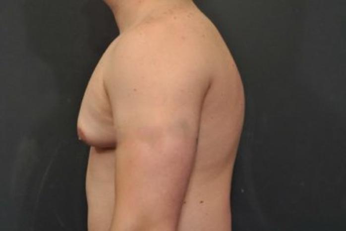 Case #2063 – Gynecomastia