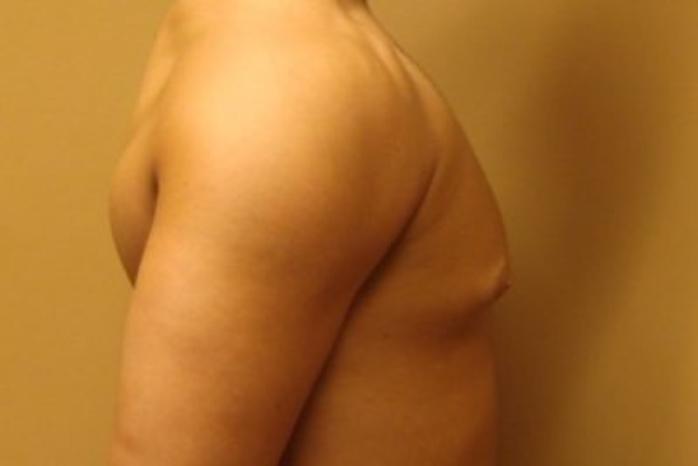 Case #2075 – Gynecomastia
