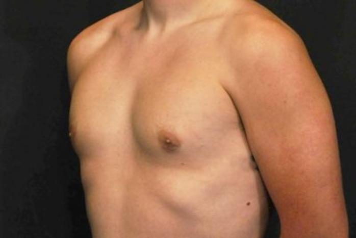 Case #2087 – Gynecomastia