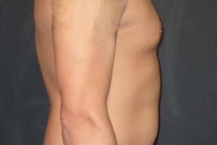 Case #2097 – Gynecomastia