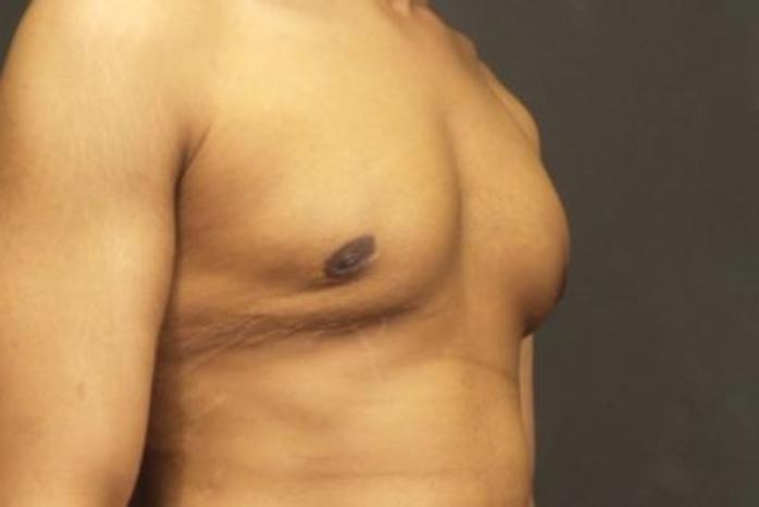 Case #2109 – Gynecomastia