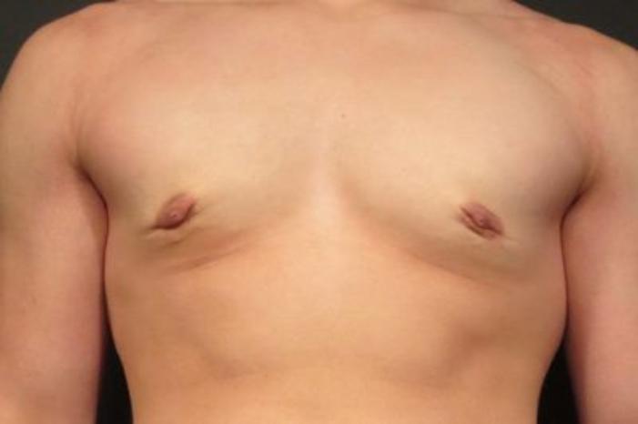 Case #2121 – Gynecomastia